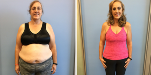 Body Before and After Rowing Machine
